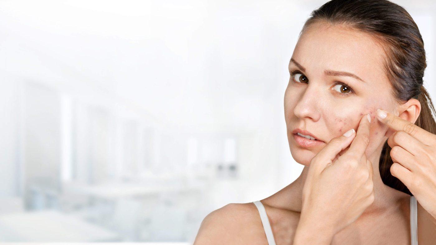 Акне, прыщи, угревая болезнь - лечение заболевания кожи