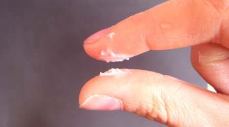 Молочница и другие грибковые поражения